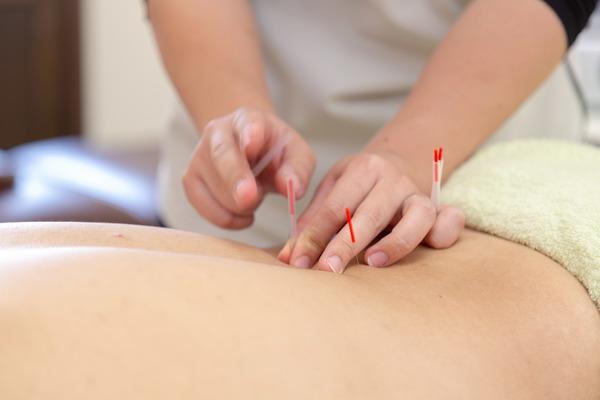 熊谷市の鍼灸(はり灸)施術・美容鍼・マッサージはお任せ下さい!